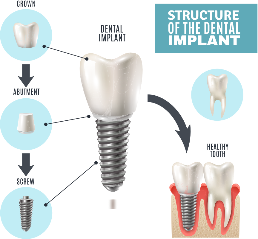 Dental-Implant-Tarzana-California