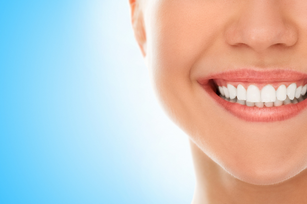 teeth whitening in Tarzana California