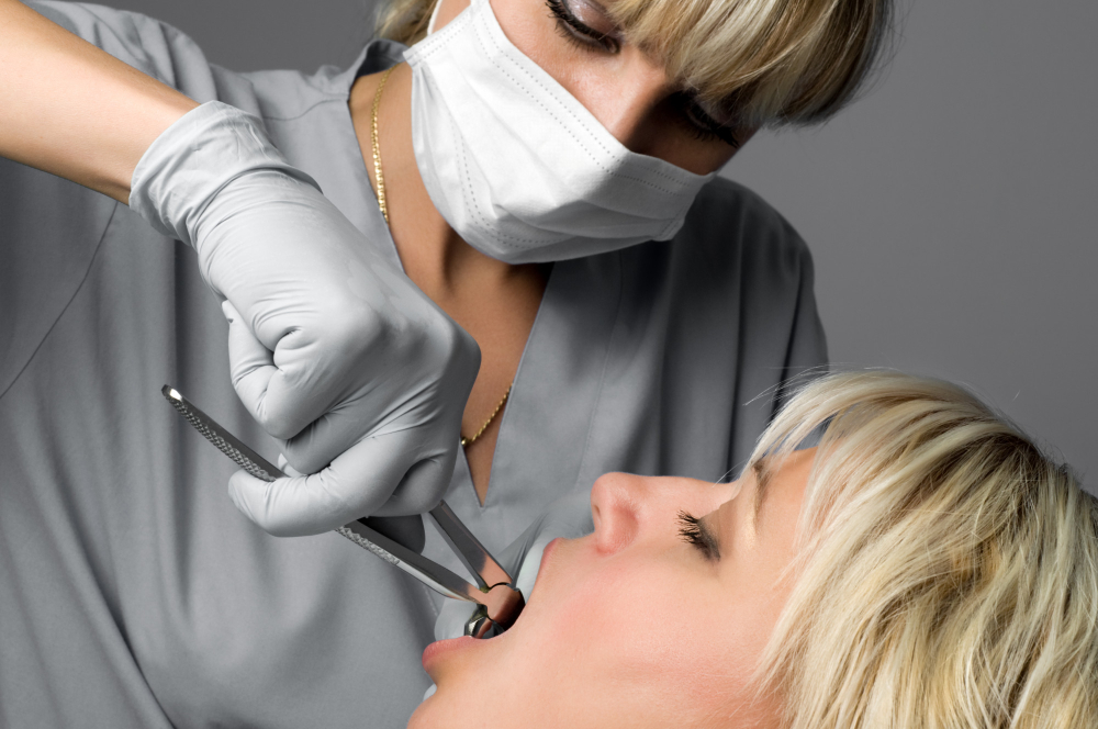 teeth extractions in Tarzana California
