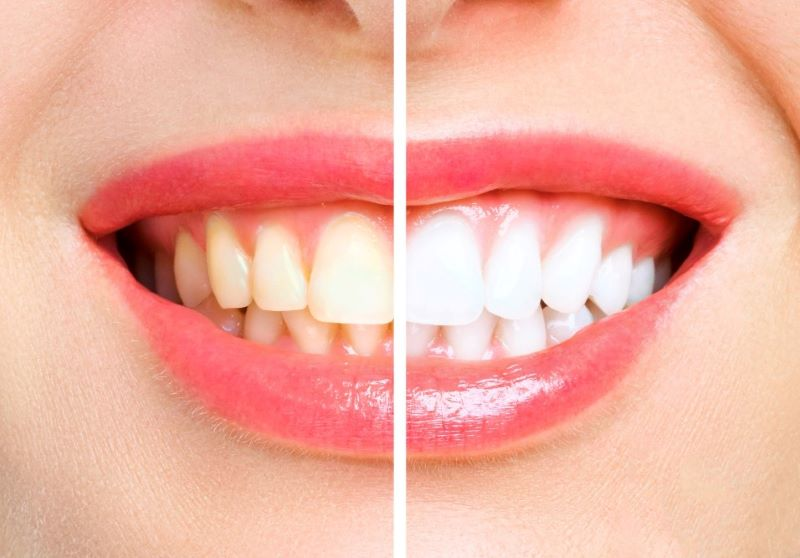 woman-teeth-before-after-whitening-dental plus Tarzana