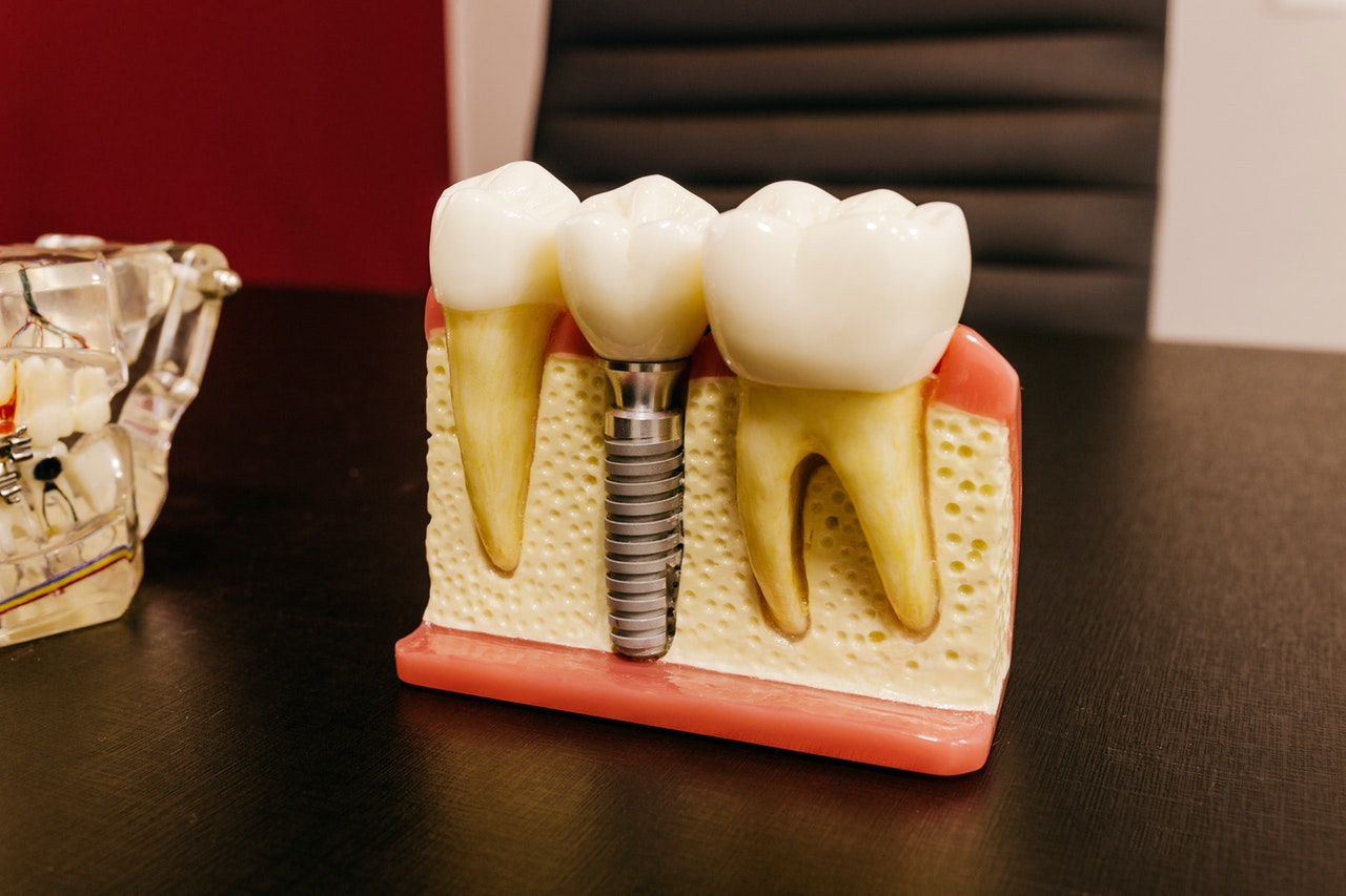 dental implants cost example
